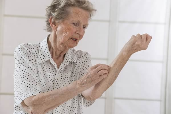 Come difendere le persone anziane dalle punture di zanzara
